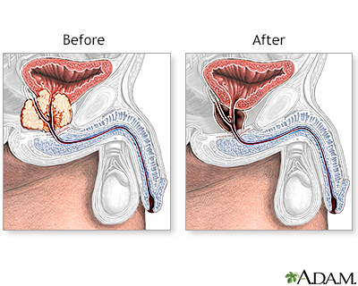 Transurethral Resection Of The Prostate