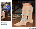 Pressure stockings